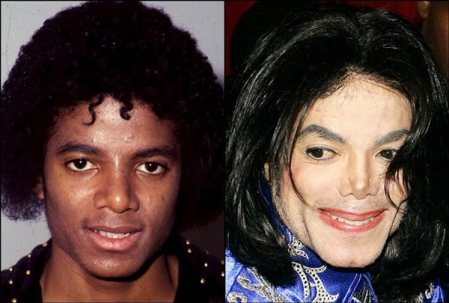 Michael-Jackson-Plastic-Surgery-Before-After